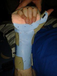 cw-wearing-splint-1