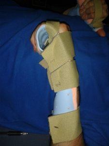 cw-wearing-splint-3